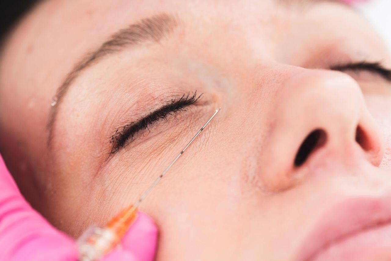 Juvederm Under Eyes Treatment