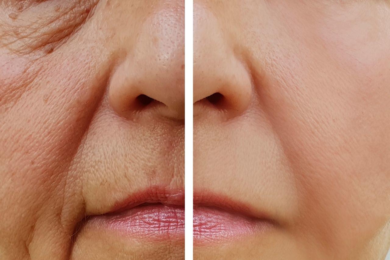 5 Types of Wrinkles